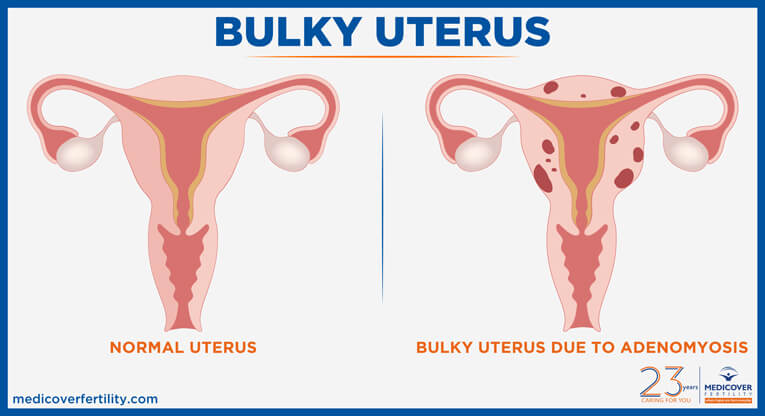 What is Bulky Uterus? It's Symptoms, Causes and Treatment