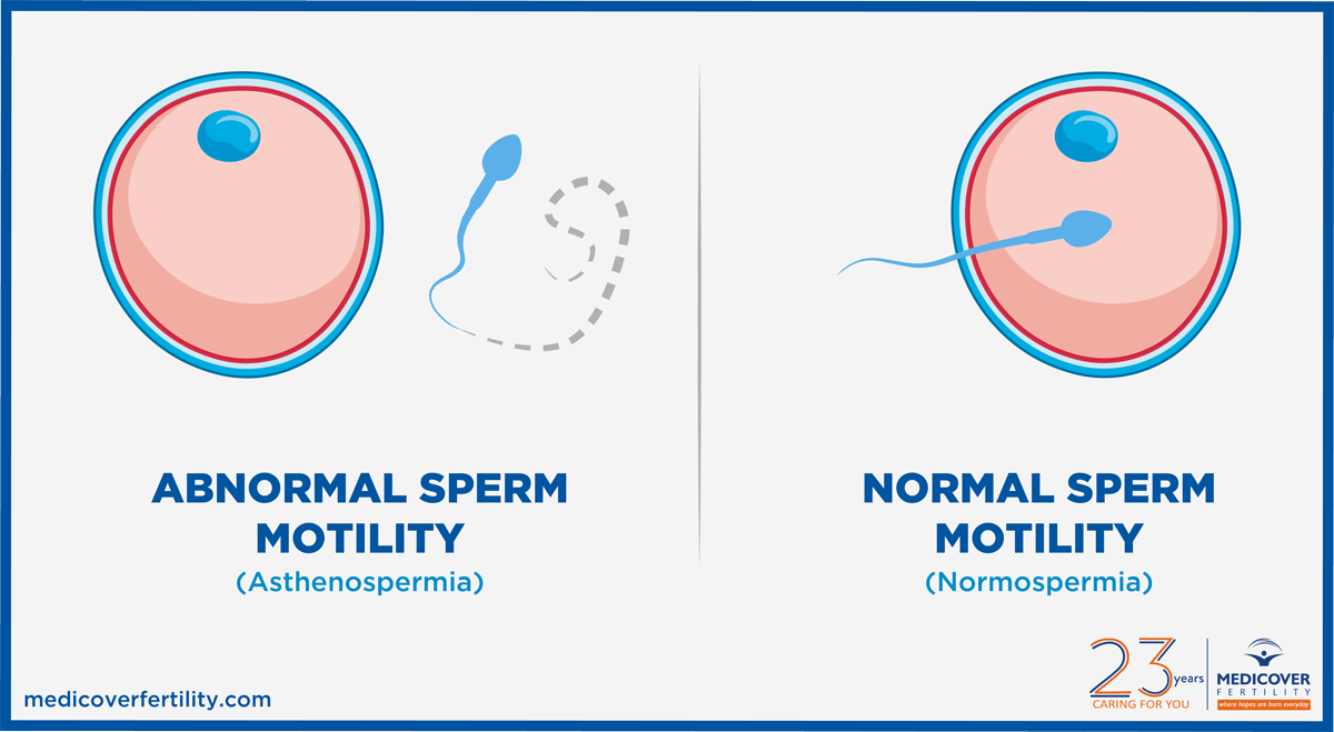 Male sperm rejuvenation
