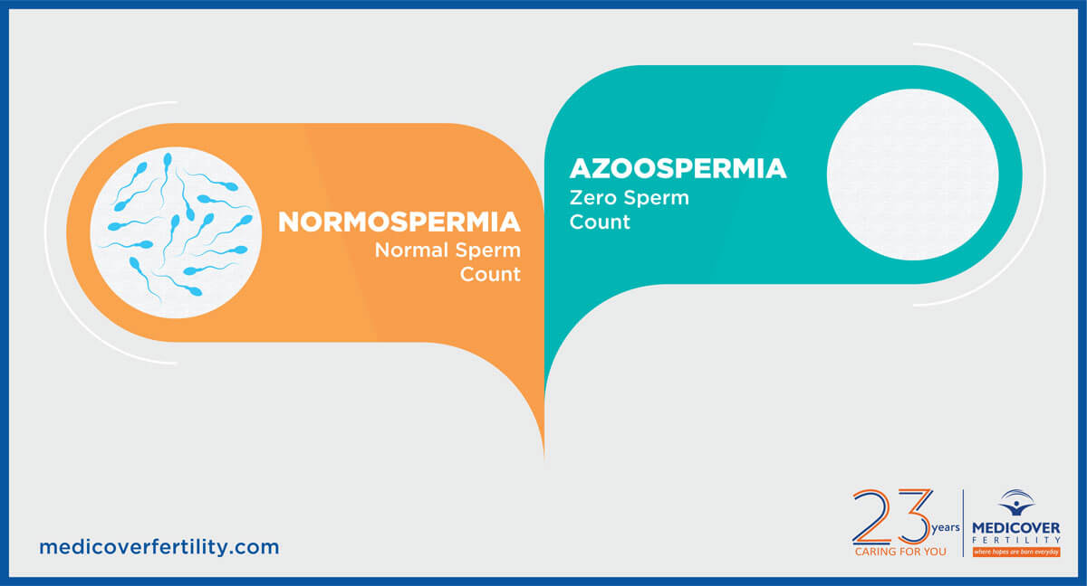 Azoospermia: Symptoms, Causes, Diagnosis and Treatment